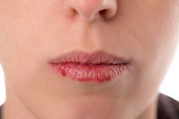 Chapped lips are made worse by the use of waxy products like chapstick ang lipsticks. They actually dry out your lips.
